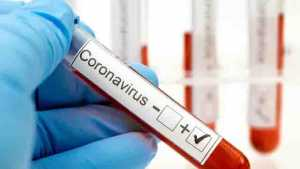 lustrasi virus corona covid-19/photo copyright by Shutterstock